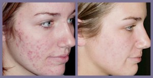 Acne scars DIMINISHED.