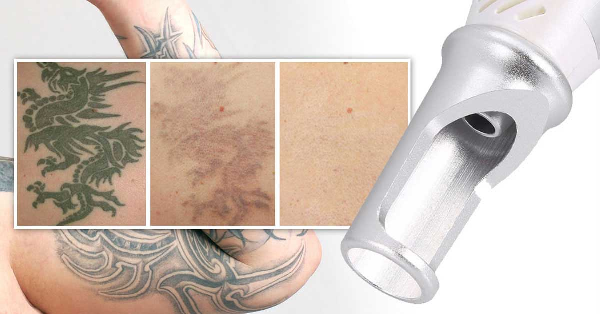 Picolaser Tattoo Removal Will Get Rid of Unwanted Tattoos