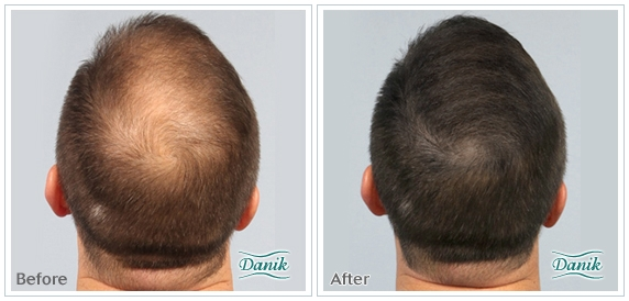 Try Prp For Hair Loss Regrow Your Hair In A Safe Natural Way